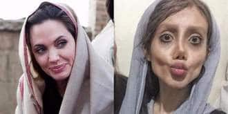 This Iranian Woman Has Undergone 50 Surgeries To Look Like Angelina Jolie