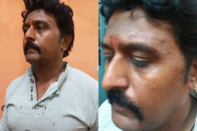 Kannada Film Actor, Komal, Beaten Up After His Car Brushed A Bike!