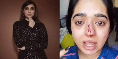 """Parineeti Chopra Backs Zomato Delivery Accused Of A Punching A Customer Says, """"This Is Inhuman, Shameful & Heartbreaking"""""""